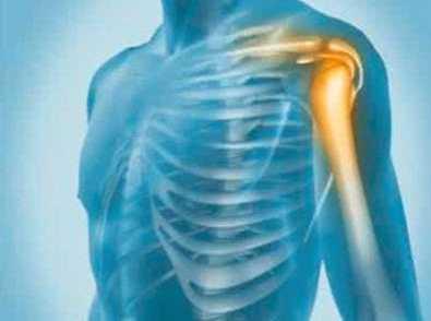 肩关节脱臼 球员如何摆脱肩关节脱位困扰